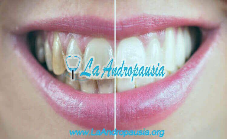 Motivos para cuidar tus dientes