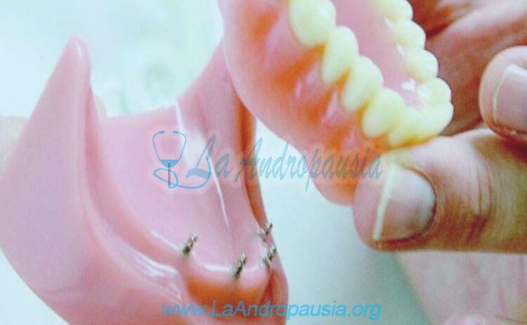 Pautas para adaptarse al uso de una prótesis dental