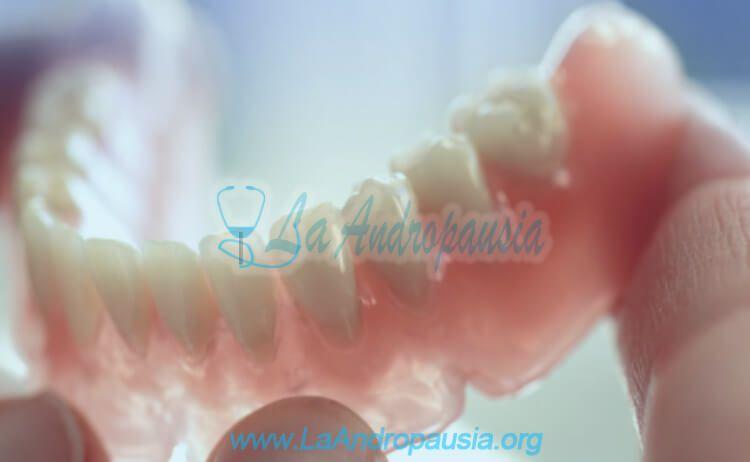Qué es una prótesis dental removible