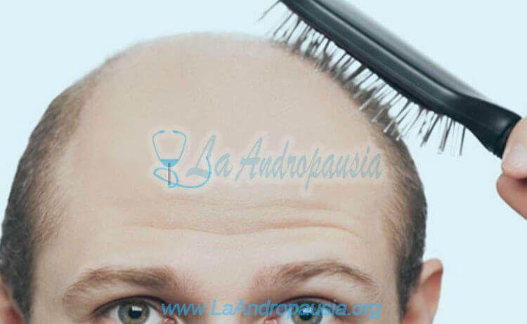 Hombre pelado con alopecia