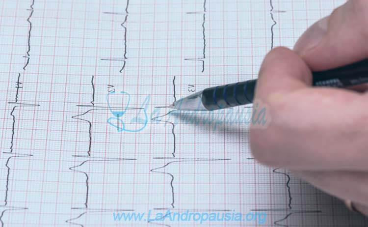 ECG (Electrocardiograma)